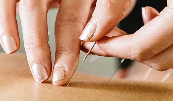 Acupuncture: The Art of Inserting Needles